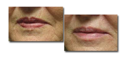 Before Fillers to Lips and Mouth, and Seven Months After Fillers (2cc Juvederm)