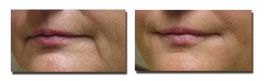Before Fillers to Marionette Lines, and Six Weeks After Fillers (2cc Juvederm)