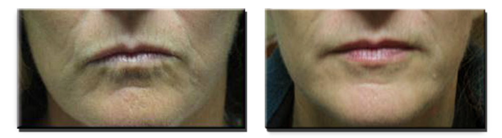 Before Fillers Around the Mouth, and Five Months After Fillers (2cc Juvederm)