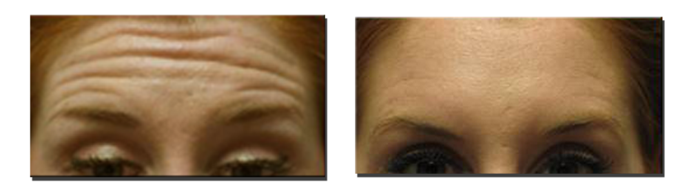 With eyebrows raised, before...and after Botox injections.