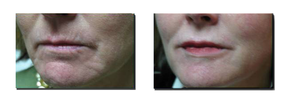 Before Fillers to Lines Around Lips and Chin, and Two Weeks After Fillers (2cc of Juvederm).