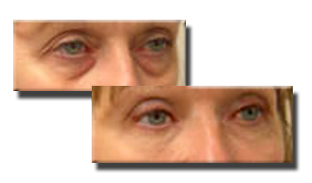 Before, with fat-loss to the eyes and cheeks.....and after fat injections around the eyes and to the cheeks.