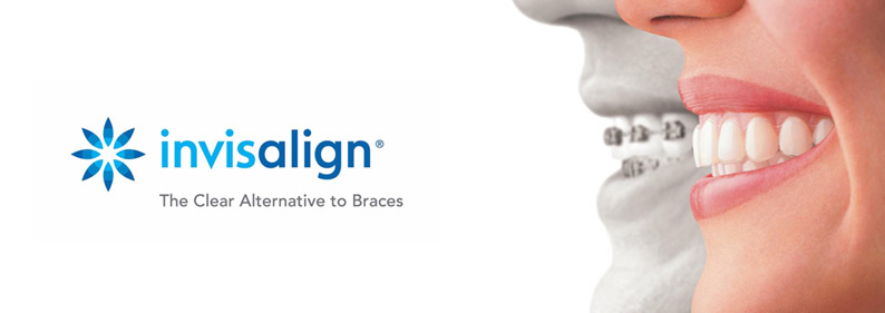 Invisalign sydney by AMK Dental is a popular choice to straighten teeth