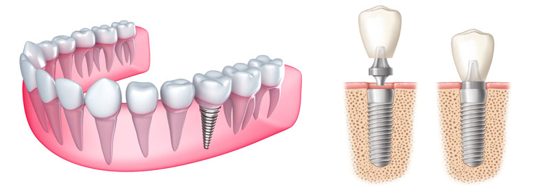 Dental Implants & Tooth Implants are available in Sydney by AMK Dental Clinic
