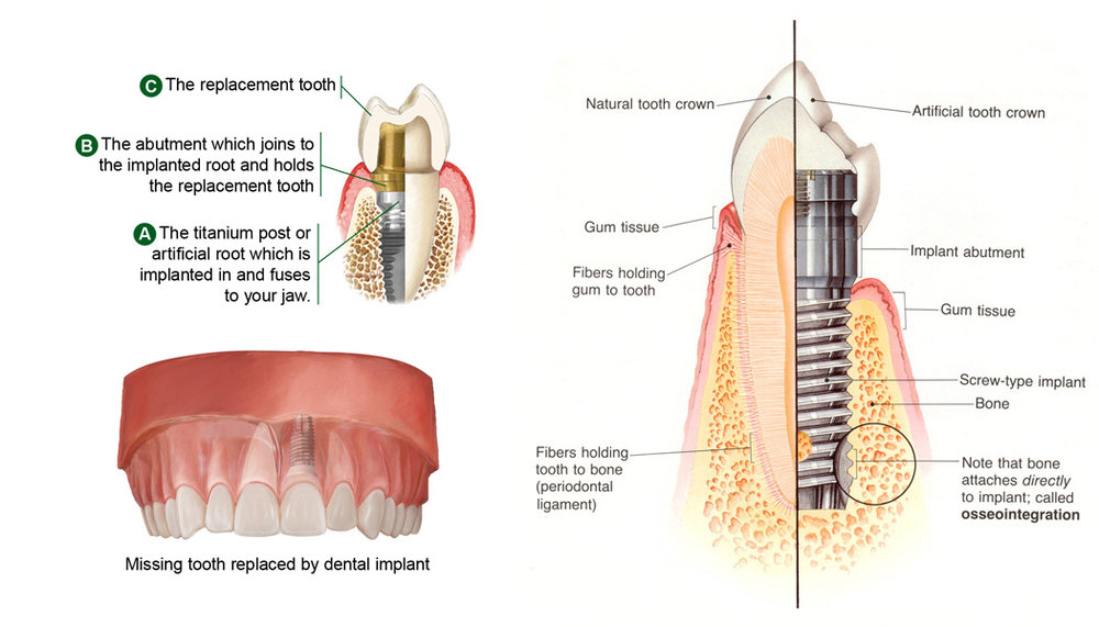 Dental Implant Infographic showing how a titanium screw is surgically inserted into the jaw bone