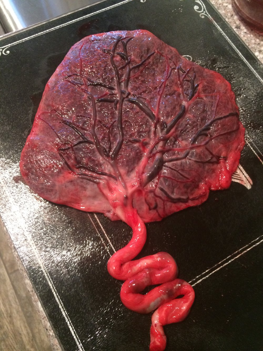 raw placenta.JPG
