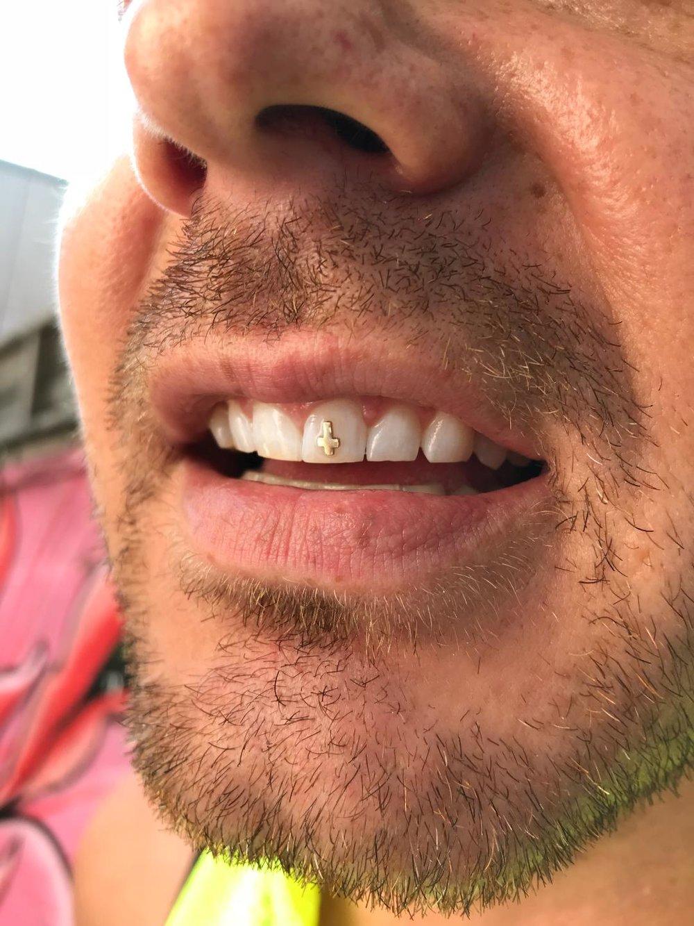 tooth13.jpeg