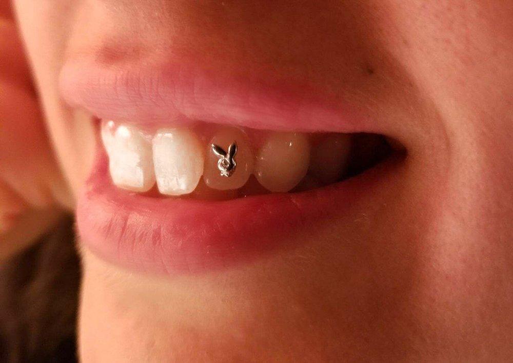 tooth12.jpeg