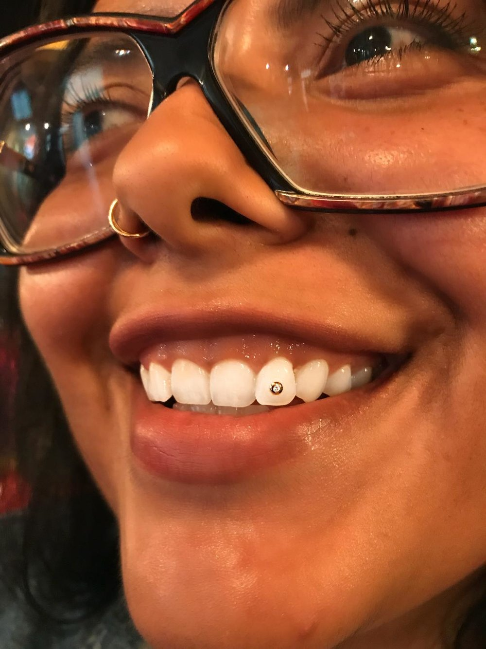 tooth7.jpeg