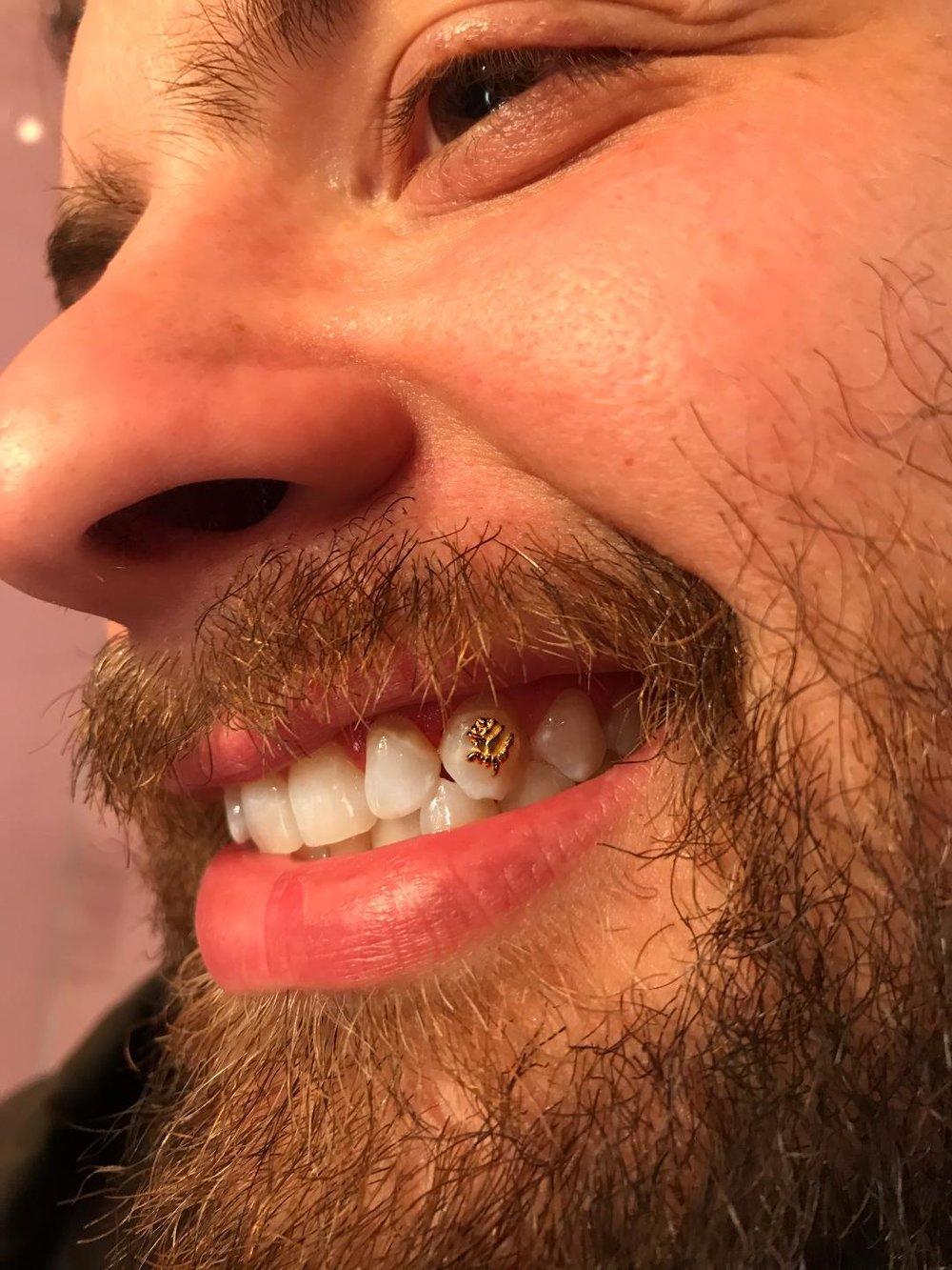 tooth8.jpeg