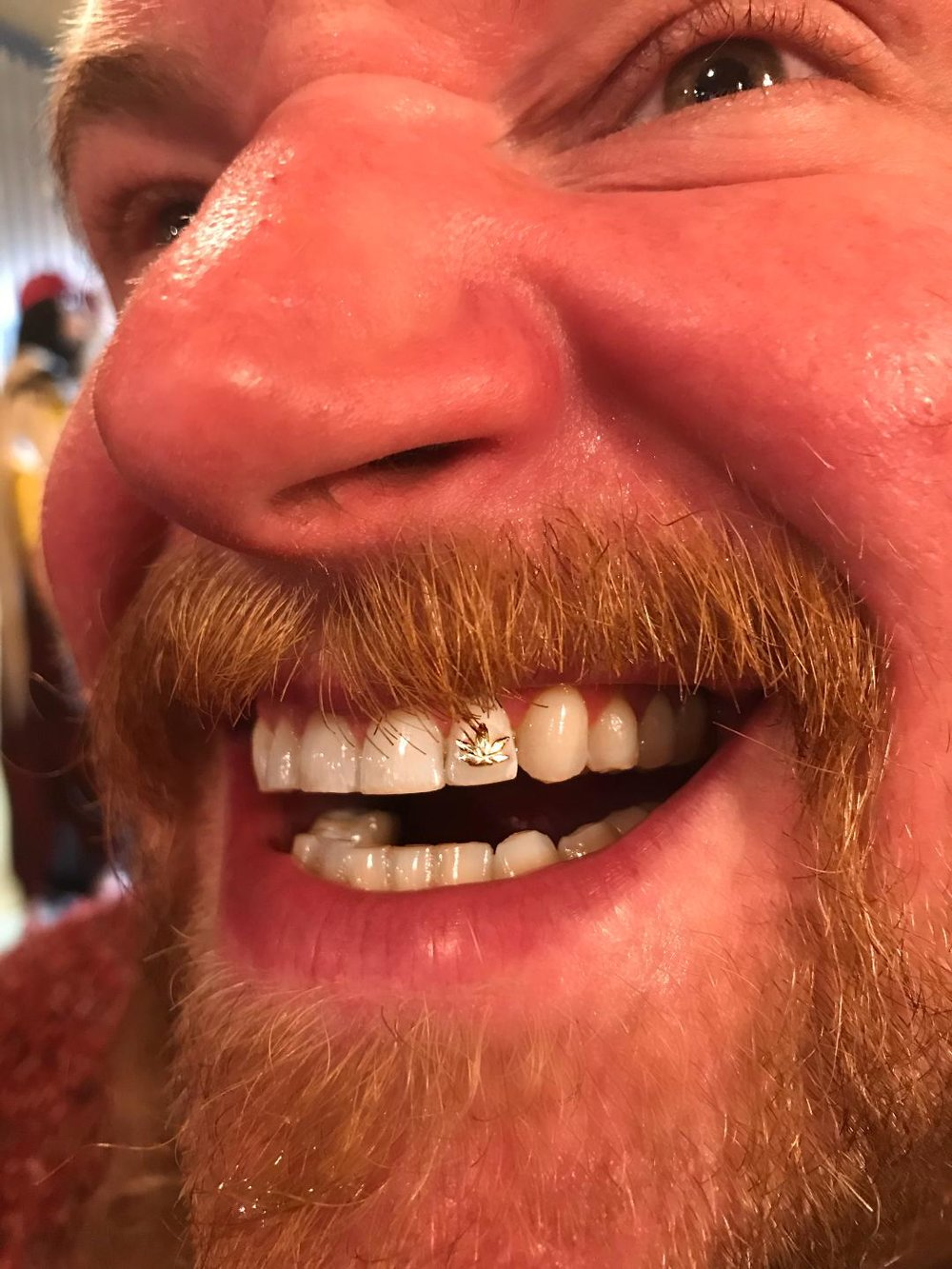 tooth6.jpeg