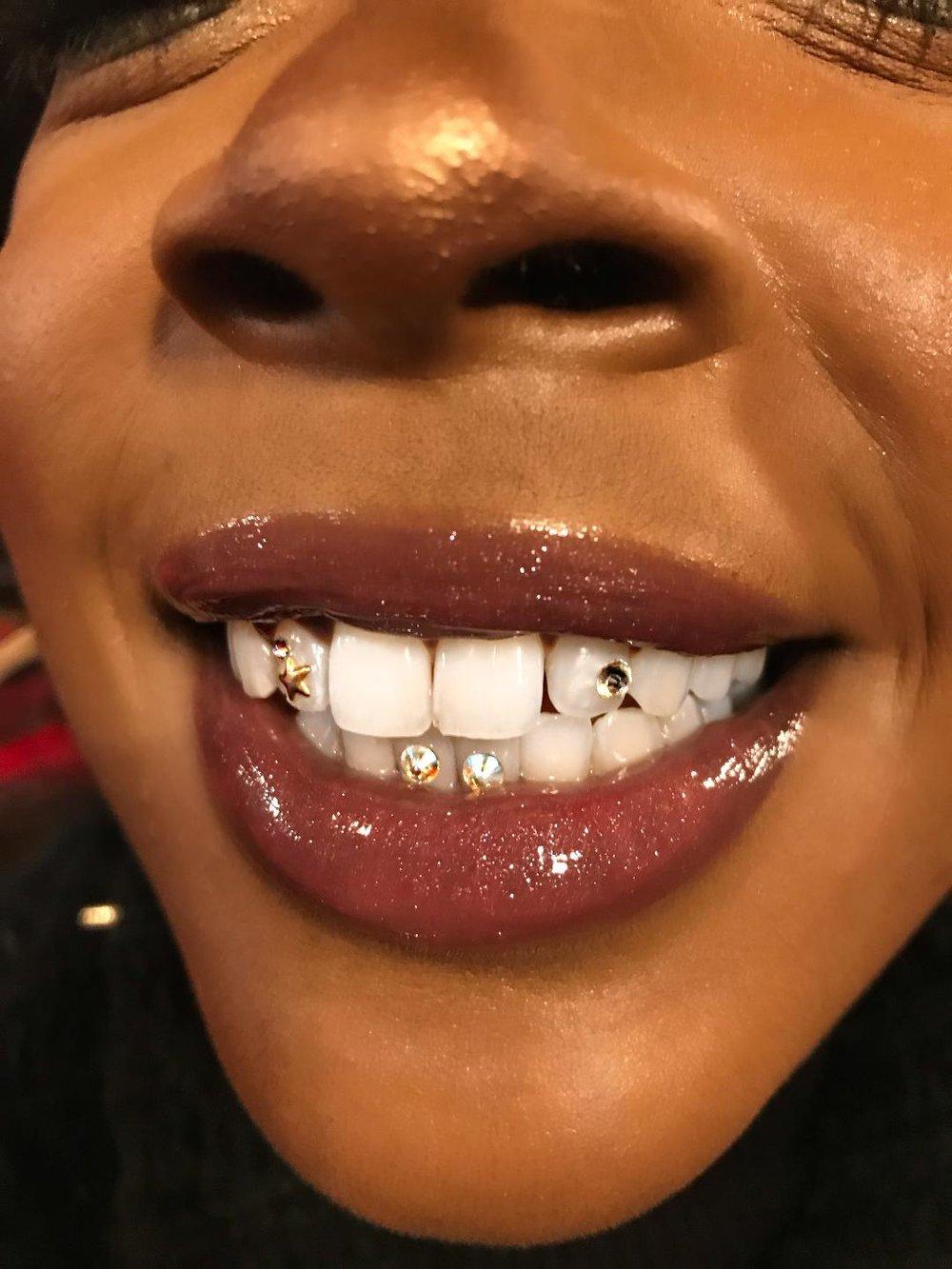 tooth2.jpeg