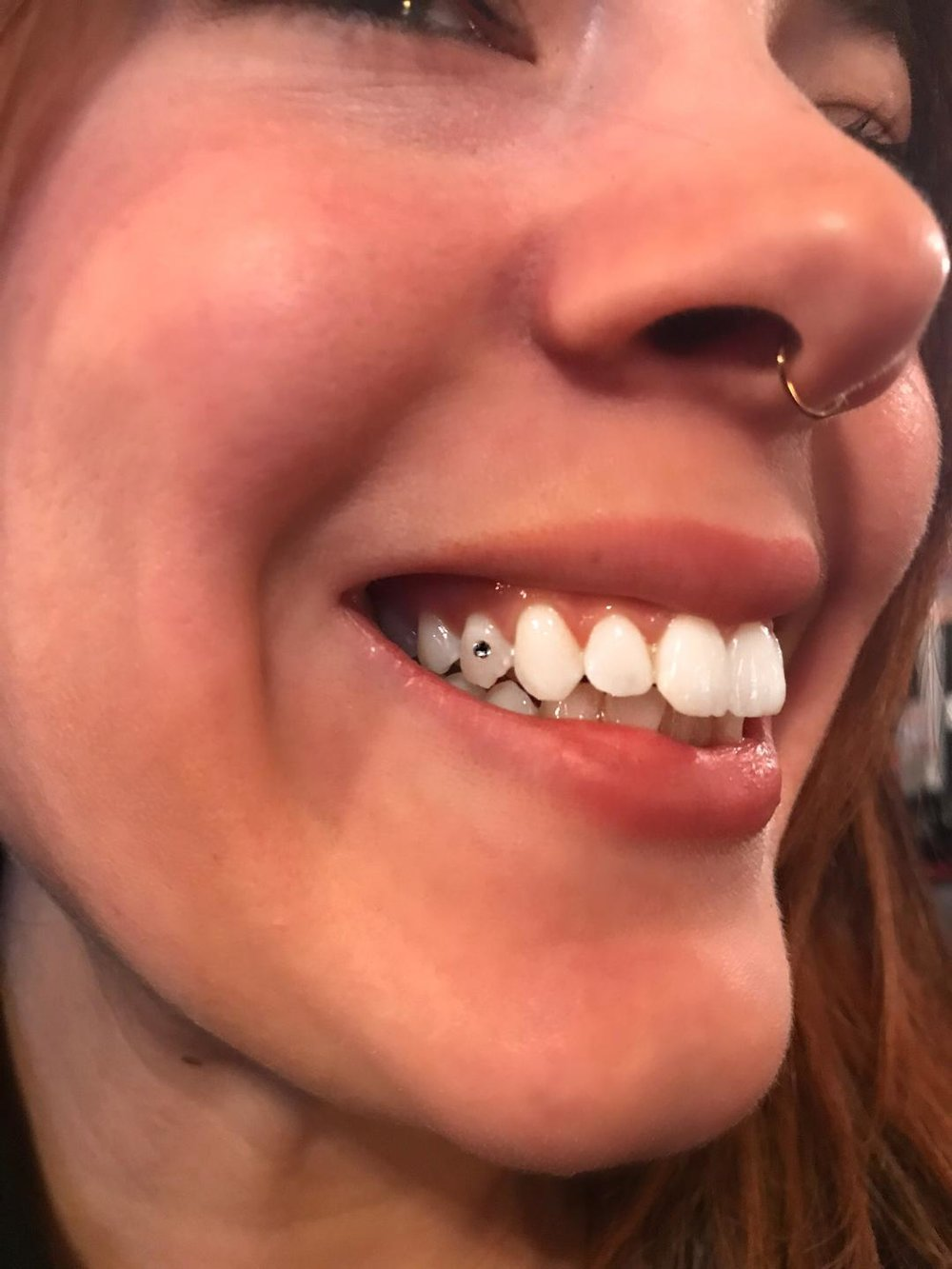 tooth.jpeg