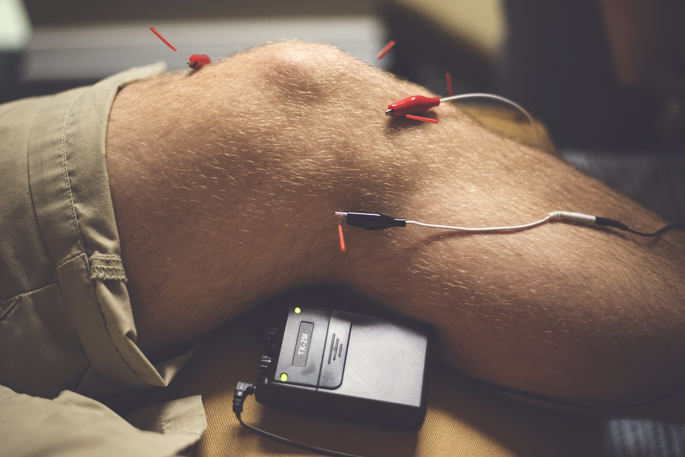 Electro-acupuncture:  Is applied to inserted needles to stimulate the acupuncture points.