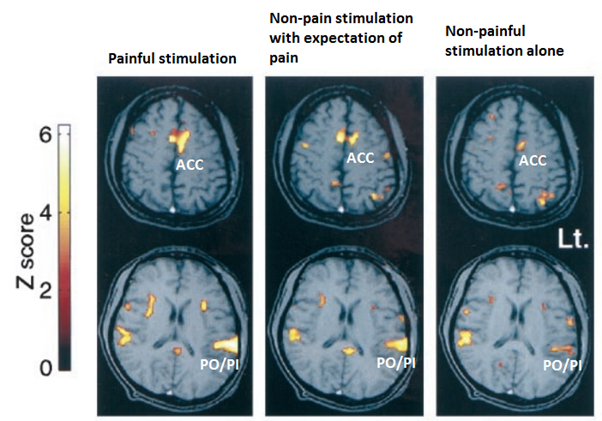 Pain relates to perceived threat