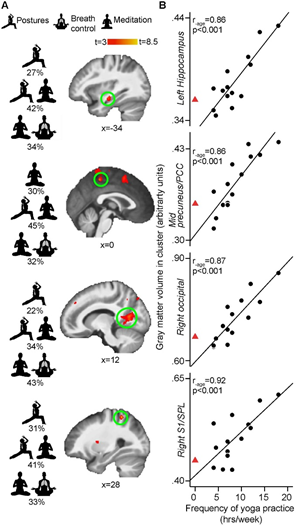 yoga promotes in brain regions for self-awareness.png