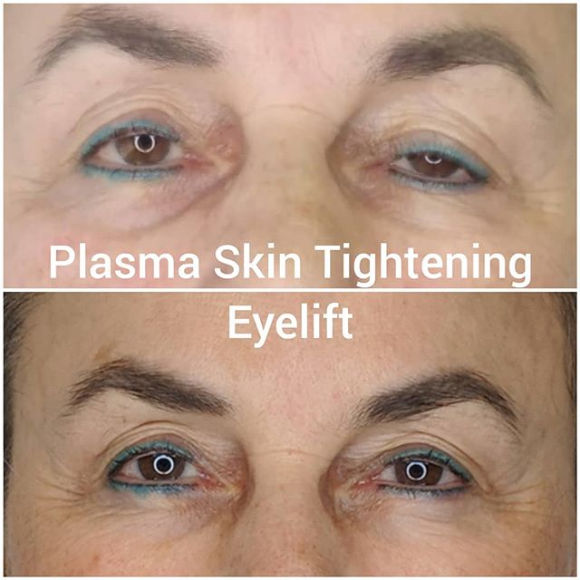 Amazing results with this client plasma skin tightening eyelift 💕💕 Non Invasive treatment for droopy eyelids. This procedure can also take care of loose skin on many parts of the body.😘 #dermaprocanada #skintightening #eyelift #noninvasive #beauty #aginggracefully #plasma #fibroblast #skin #looseskin #youthfull #youngereyes #kitsilano #vancouver #vancity #women