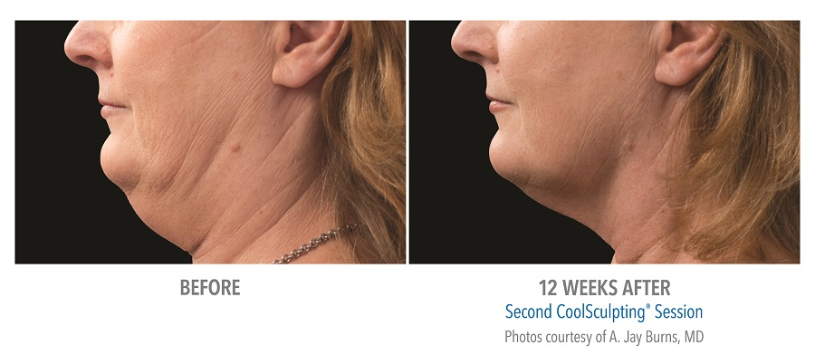 B&A-Burns-SM-pt012F-2set-18wk2_LEFT - LOW RES.jpg