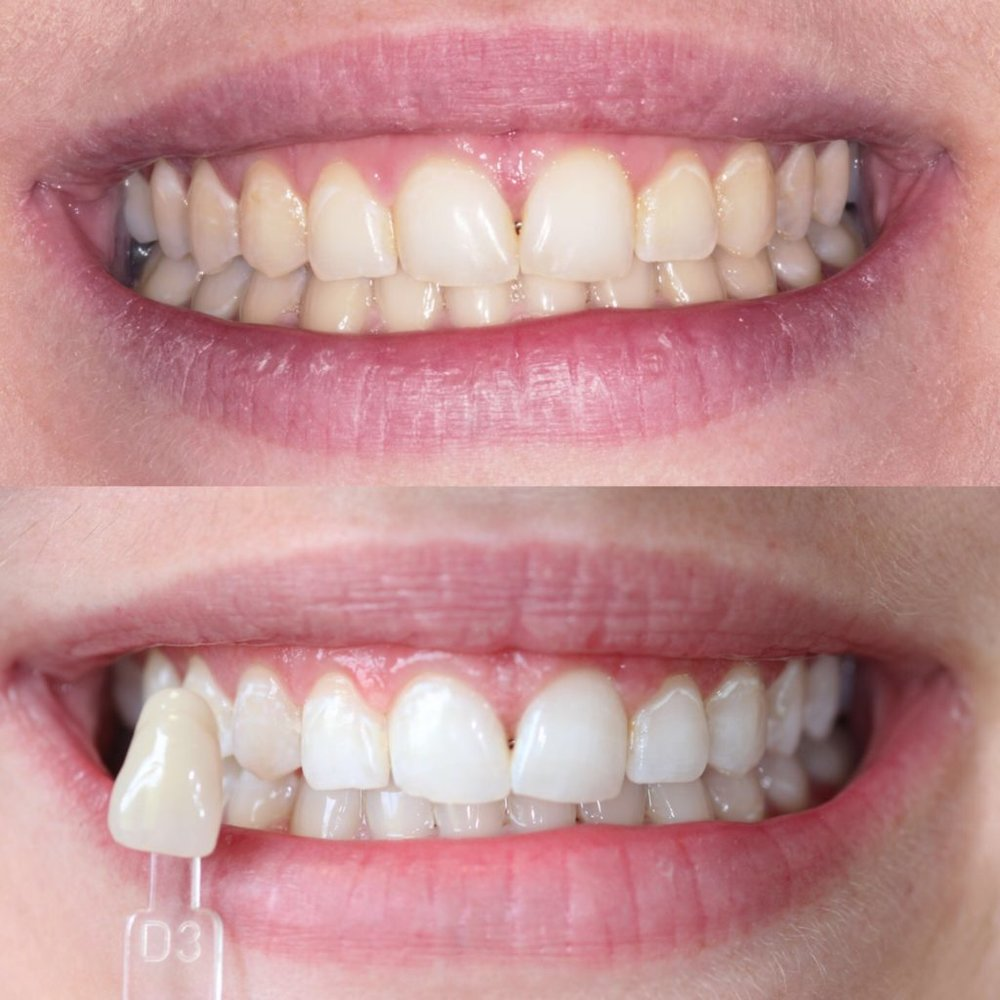 teeth-whitening-before-and-after-1024x1024.jpg