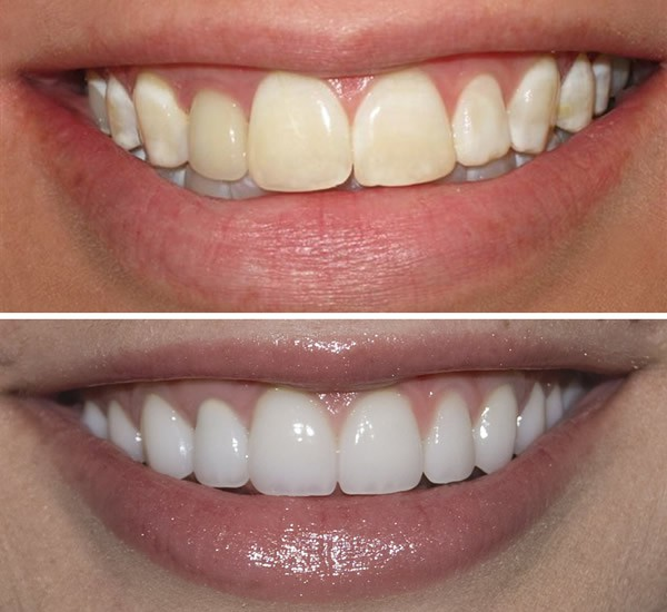 Zoom-Whitening-Before-and-After-pictures-in-Dubai.jpg