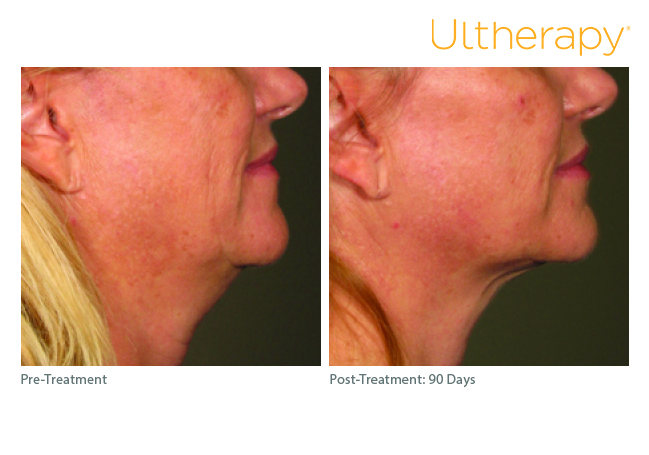 ultherapy-0283j-r_before-90daysafter_lower3_low-res.jpg