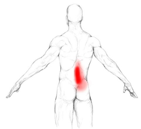 iliopsoas-back-pain-480x439.jpg