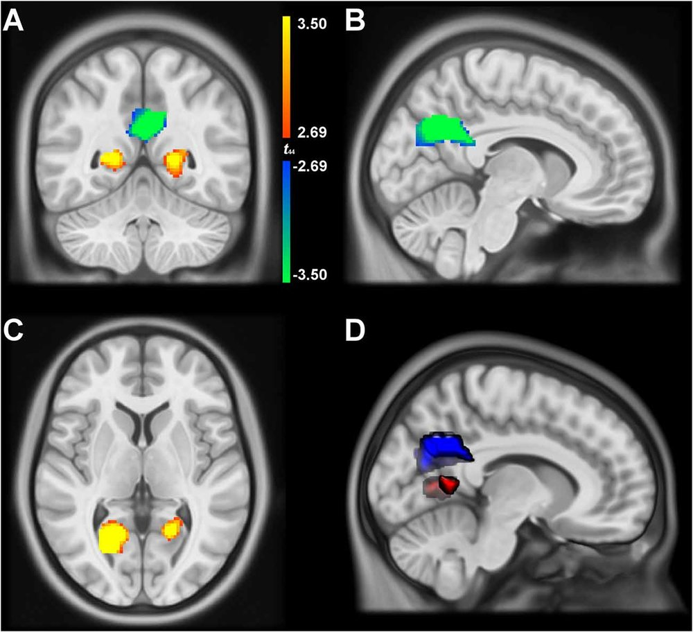 Burles F, Umiltå A, McFarlane L, Potocki K, Iaria G (2018) Ventral-Dorsal functional contribution of the posterior cingulate cortex in human spatial orientation: A meta-analysis, Frontiers in human neuroscience, 12, 190,  https://doi.org/10.3389/fnhum.2018.00190