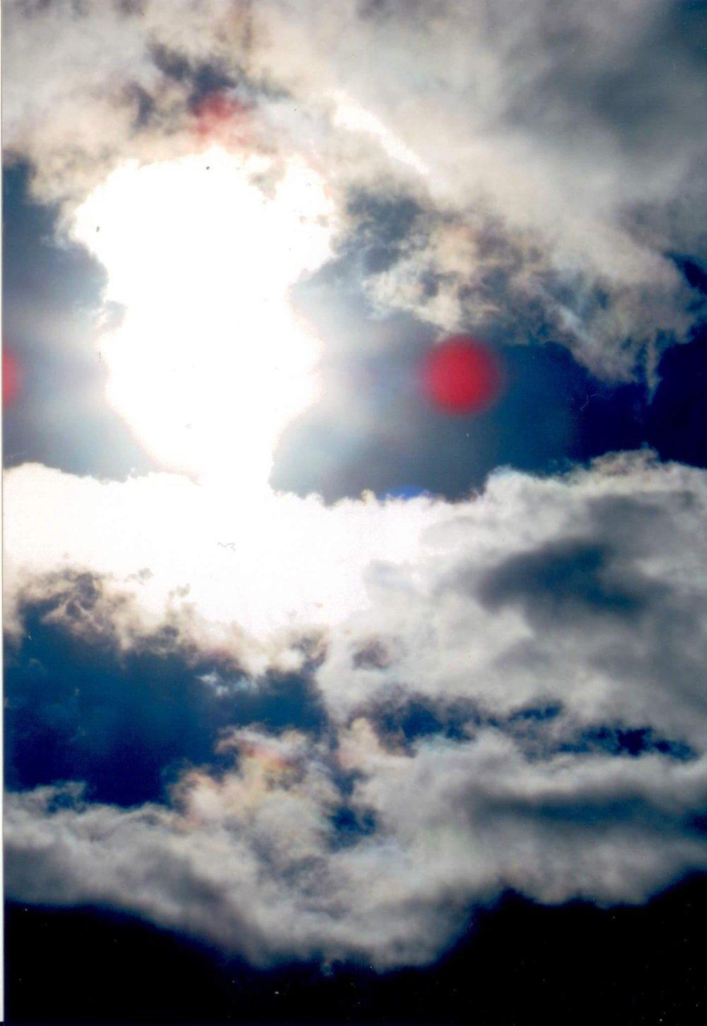 In questa foto ci sono spiritacci caniferi che ci piace la carne, incomincia con piccolo foruncolo e si forma con piaghe rosso scuro non guarisce con nessuna medicina si vedono delle faccie nelle farite e sembre peggiorand. La guarigione per questa malattia è la preghiera di liberazione dello spirito carnifero dal corpo e accendere candele miracolata, si puo guarire.