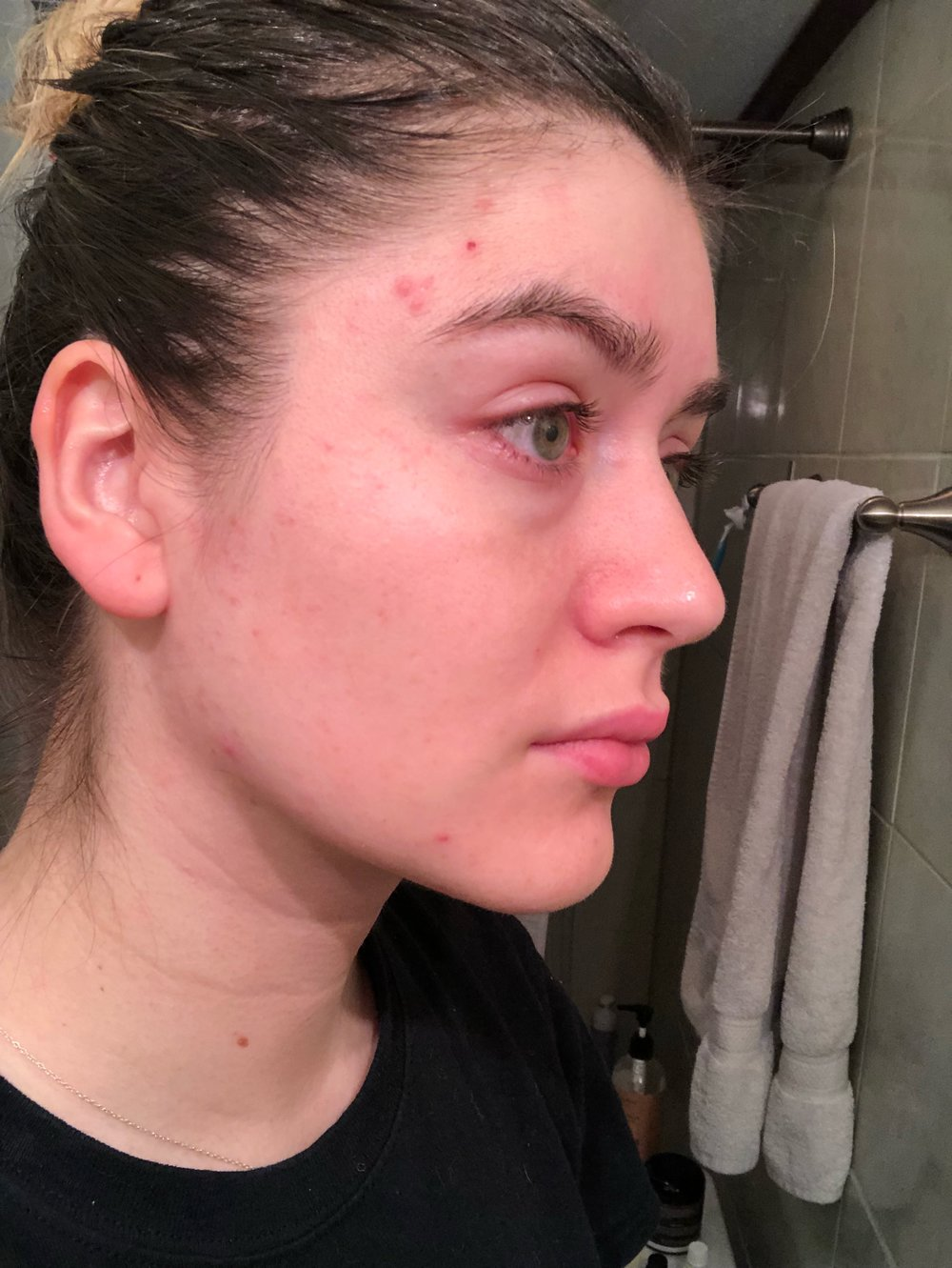Adult acne is really a result of these things: our diets and us not listening to what our bodies aren't cool with anymore, hormones being out of whack, ...