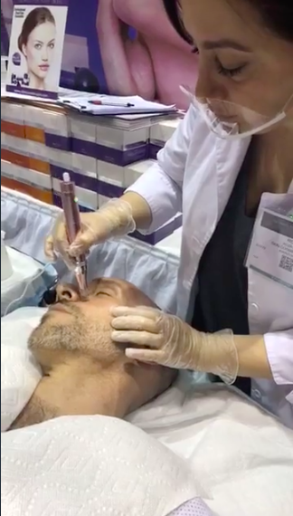 Click here to watch the treatment on Facebook.