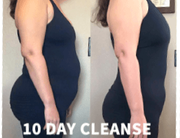 Jennifer R. - Day 1 & Day 10 Before & After