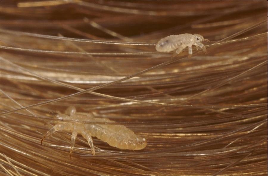 head-lice-pediculus-capitis-crawling-darlyne-a-murawski.jpg