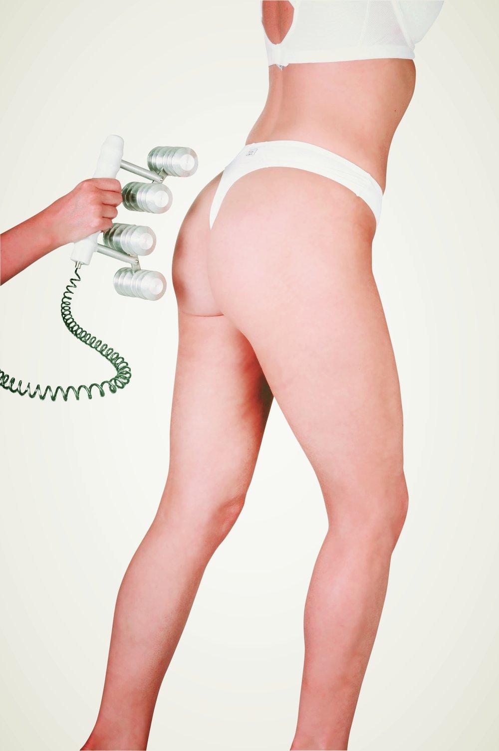 CACI Body treatment.jpg