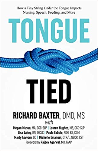 tongue tied: how a tiny string under the tongue impacts nursing, speech, feeding and more  Kindle,  paperback, and hardcover by Richard Baxter DMD MS