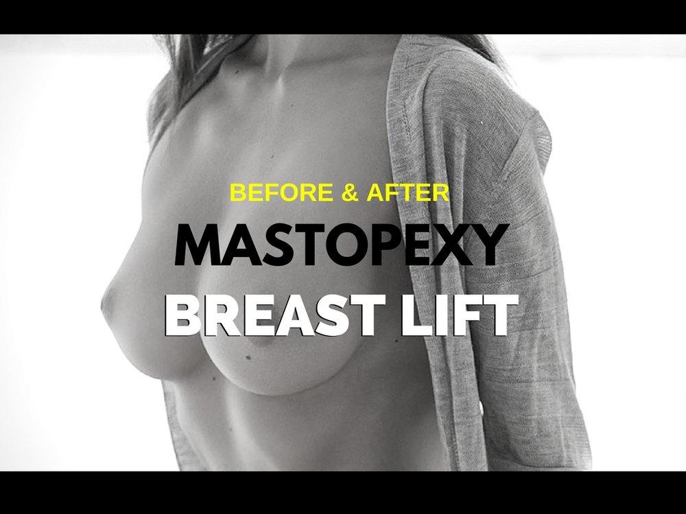 MASTOPEX.jpg