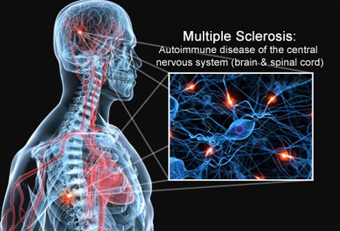 multiple-sclerosis-s1-brain-spinal-cord-nerves.jpg