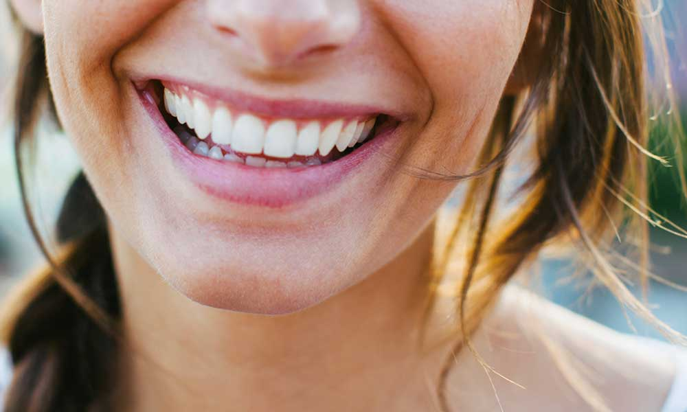 Teeth Whitening  - In-office or at home, you choose→