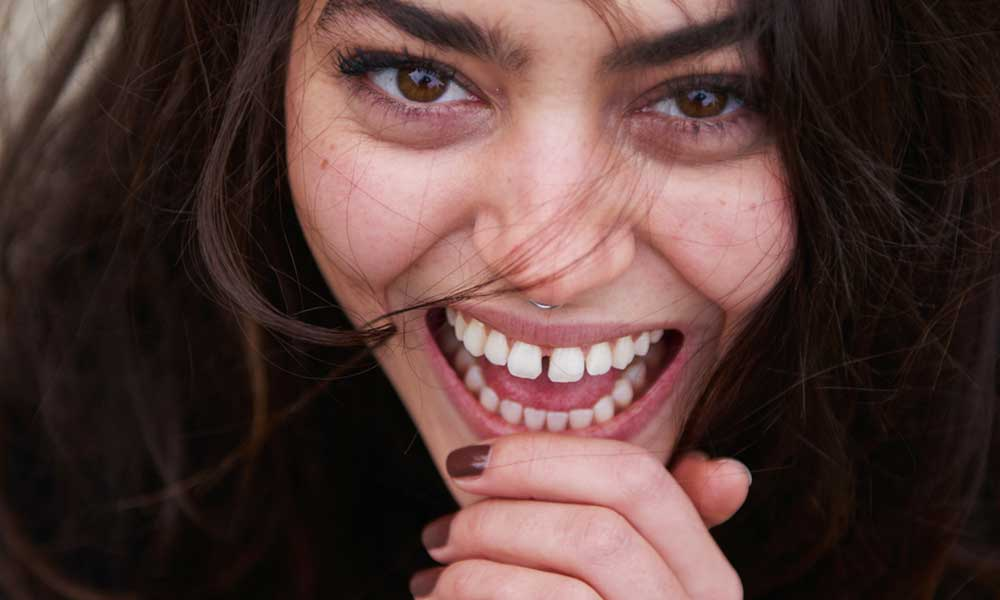 Cosmetic Problems - Missing TeethCrooked, Spaced, Crowded TeethCracked, Chipped, Broken TeethDiscoloured TeethWorn TeethOld FillingsGummy Smile→