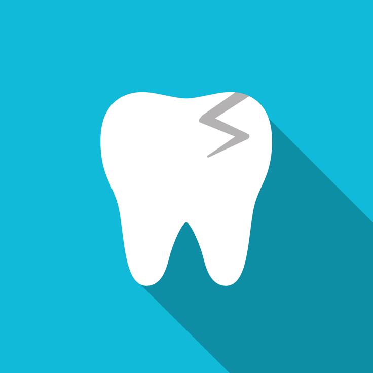 Broken, Cracked Teeth