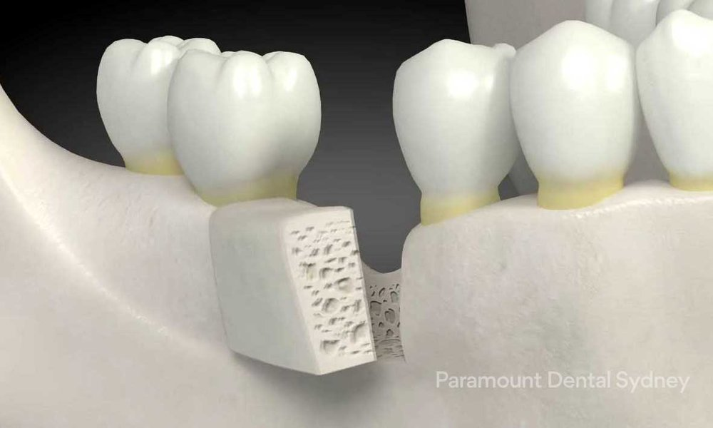 Bone Grafting - →