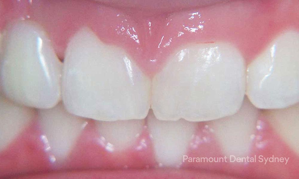 Gum Reshaping - →