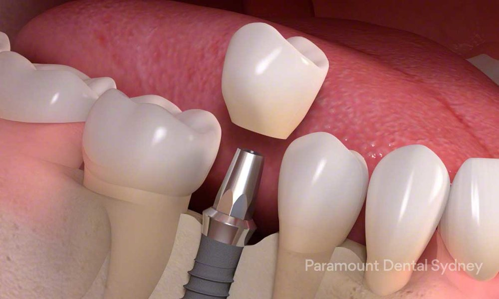 Single Tooth Implant - →