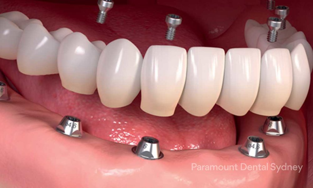 Full Mouth Implants - →