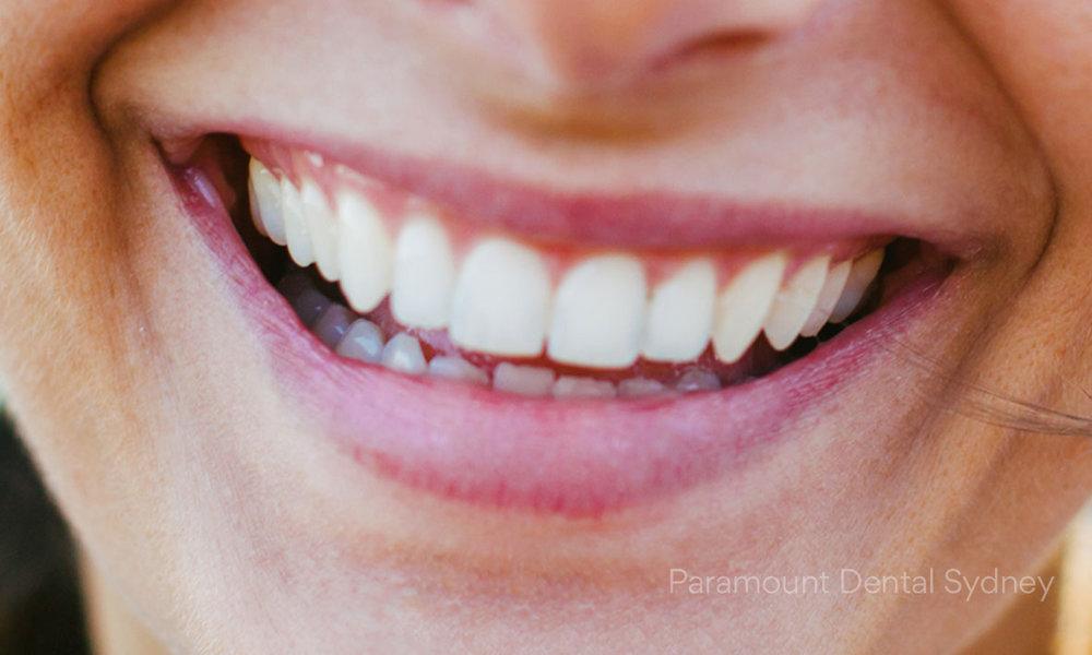 ©Paramount Dental Sydney Checkup, Clean & Facial Injectables 05 Teeth Whitening.jpg