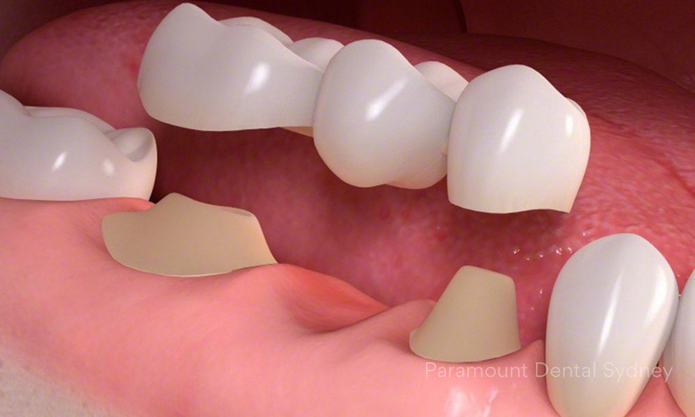 Dental Bridge - A connecting attachment to join existing teeth with a crown→
