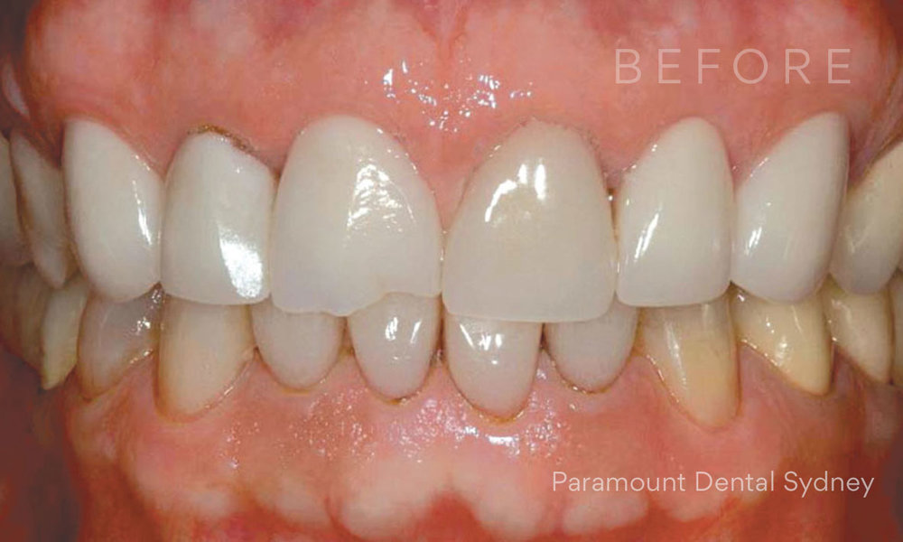 Before:  Chipped  &  Worn Teeth ,  Discolouration  +  Periodontal Disease
