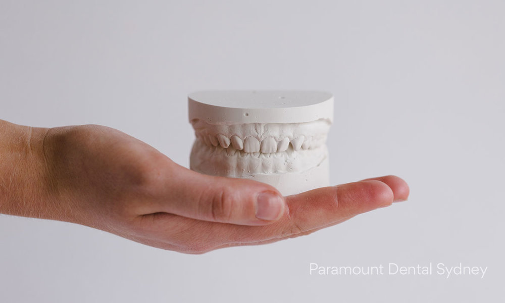 ©-Paramount-Dental-Sydney-Make-The-Most-of-Your-Health-Fund-This-December-02.jpg
