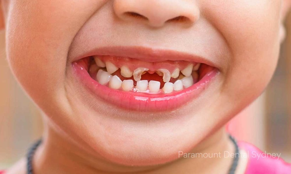Tooth decay among children is increasing steadily in Australia.