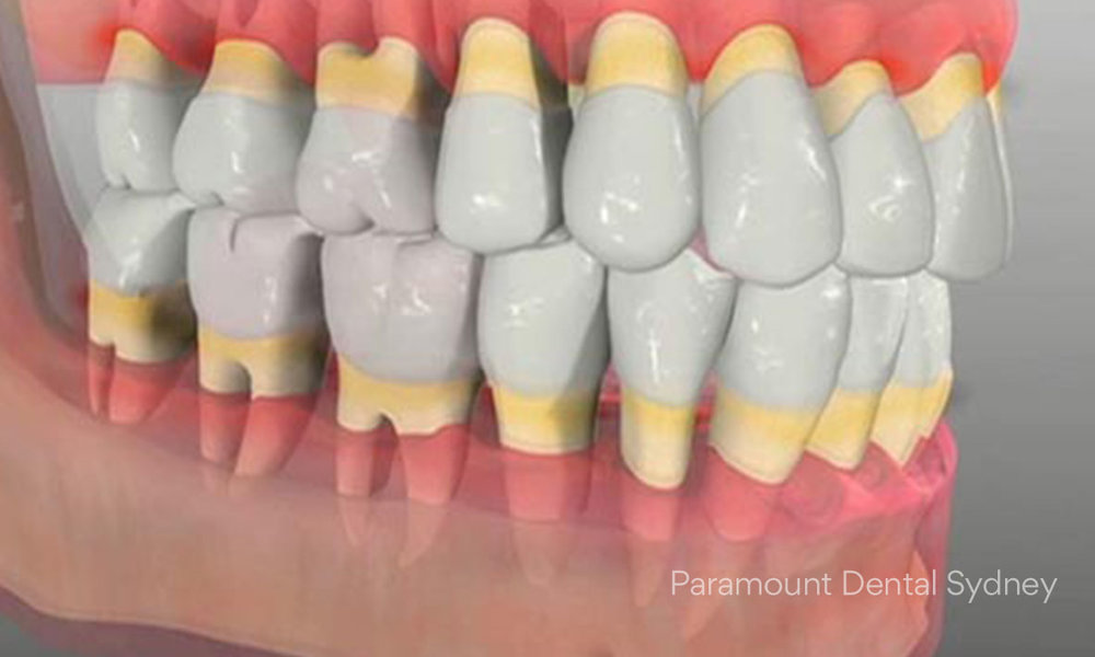 Yellow markings show the areas of gum loss as a result of  periodontal disease .