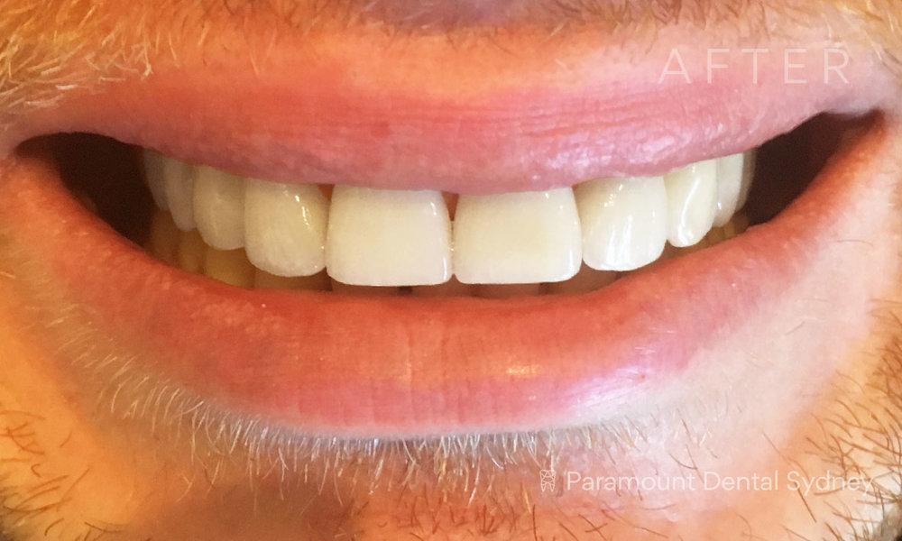 After:  Porcelain Veneers ,  Teeth Whitening